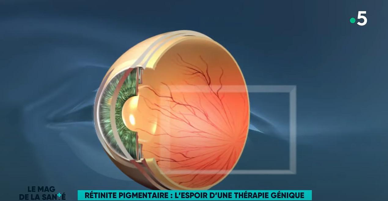 Rétinitie pigmentaire - l'espoir d'une thérapie génique